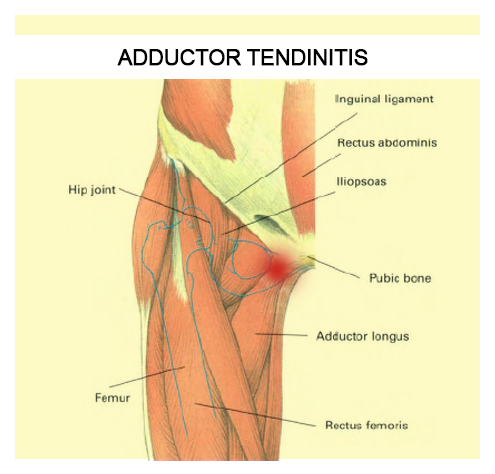 La tendinopatía del aductor | Terapia Alternativa Muscular
