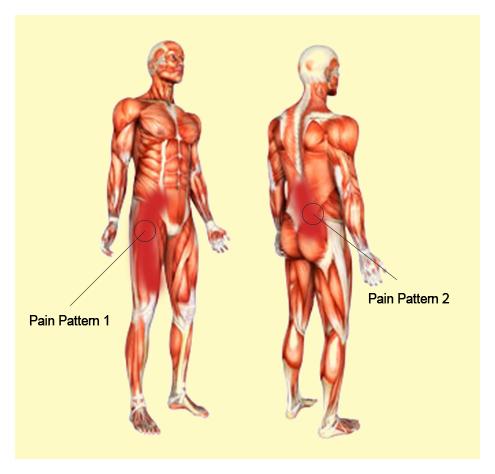 Síntomas   Terapia Alternativa Muscular   Terapia Medica Clinica de ...