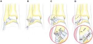 inversion sprain ankle injury