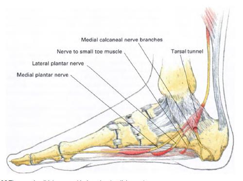 Síndrome del túnel tarsiano | Terapia Alternativa Muscular | Terapia ...